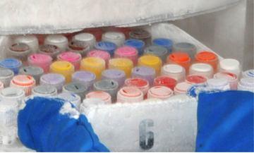 Chu reims centre recherche biologique champagne ardenne